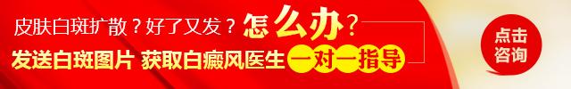 岳阳白癜风医院